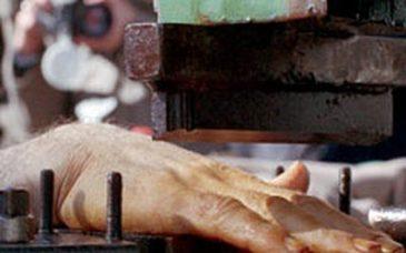 Iran-amputation-finger-gr_03_xNrP0BC.jpg.885x520_q85_box-089240230_crop_d_57qDsoA.jpg.885x520_q85_box-00884520_crop_detail_upscale